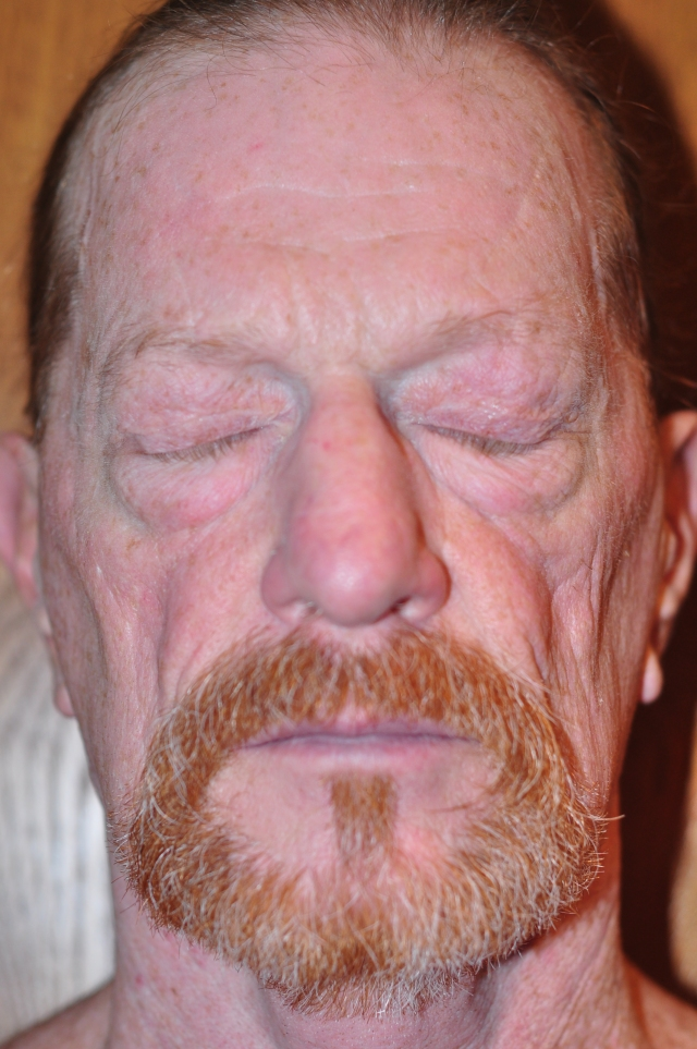 My 62yo Redhead skin, sun damage and all